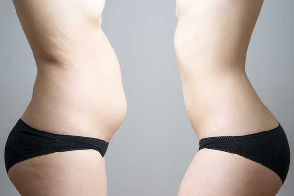 Vaser Lipo recovery - Hints and tips to ensure fabulous results